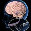 darpa-brain-100px copy