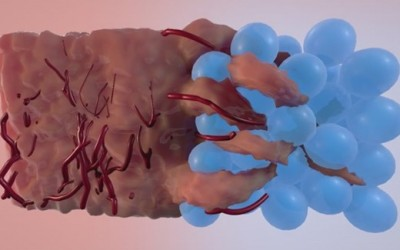 UCLA Researchers Develop New Material to Accelerate Healing