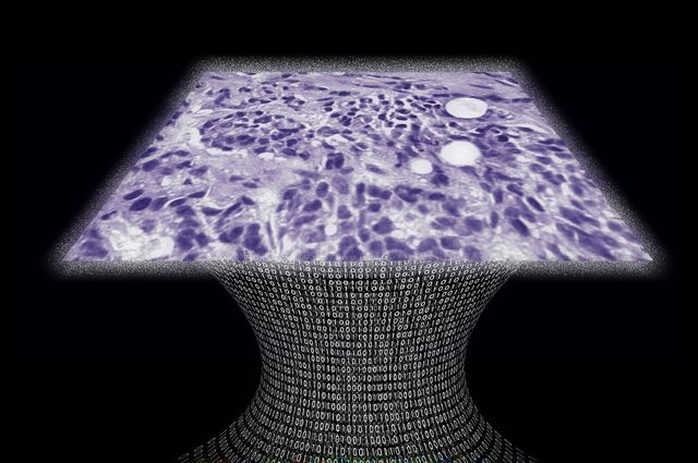 Lens-Free Microscope can Detect Cancer at the Cellular Level