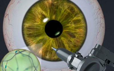 Adhesive gel helps the eye heal itself