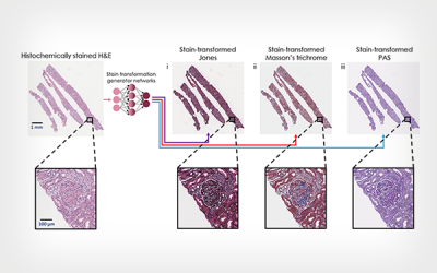 Artificial Intelligence Re-stained Images of Tissue Biopsy Expedite Diagnoses