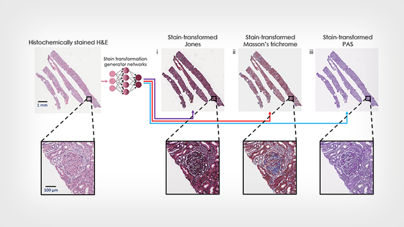 Virtual transformation and re-staining of one tissue biopsy stain (H&E) into three special stains using deep neural networks