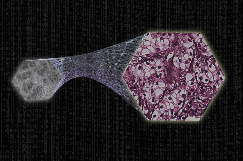 Artistic depiction of how AI is used to virtually stain human tissue using optical microscopy.