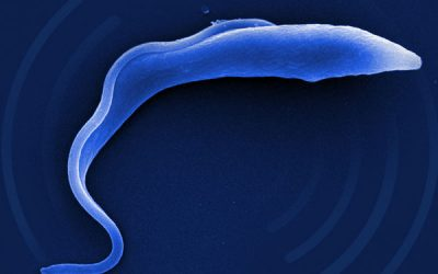 Artificial intelligence-based device detects moving parasites in bodily fluid for easier, earlier diagnosis